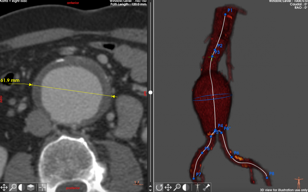 Terumo Aortic Treo Stent Graft implanted
