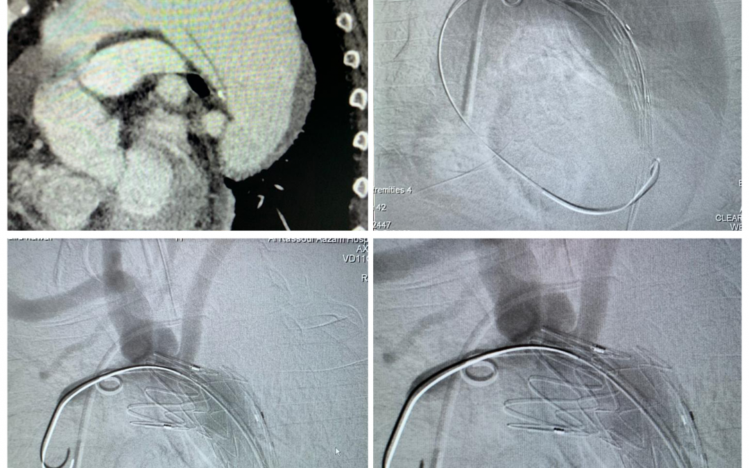 Type B aortic dissection treated by thoracic endoprosthesis