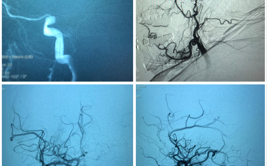 Successful thrombectomy performed by Dr. Raghid Kikano at LAUMC