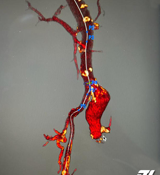 90 Years old Amputee With Aneurysmal Common Iliac Artery Treated With TREO AUI