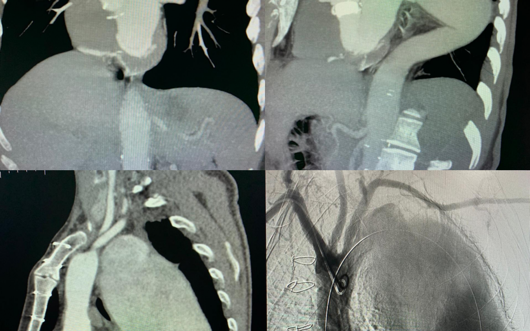 Type B Dissection Treated With Relay Plus