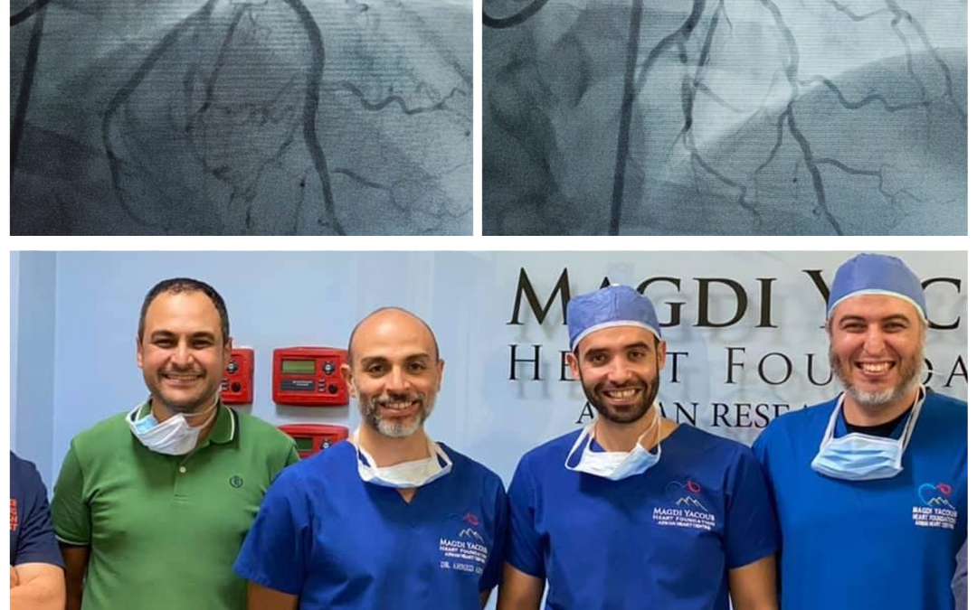 First Shockwave IVL at Magdi Yacoub Global Heart Foundation