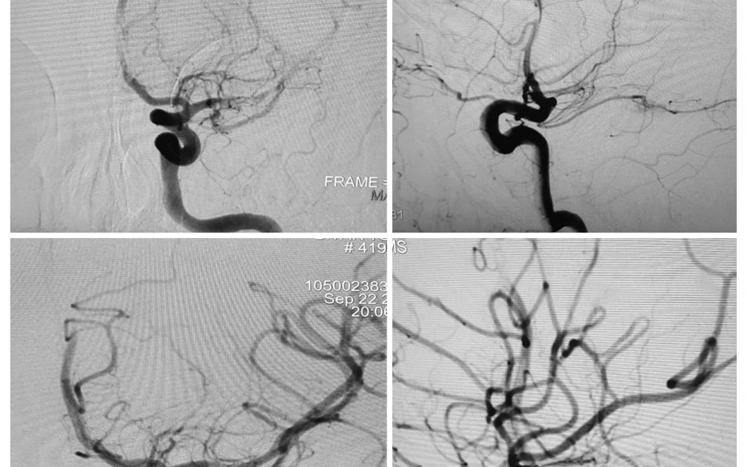 Successful mechanical thrombectomy using penumbra JET 7