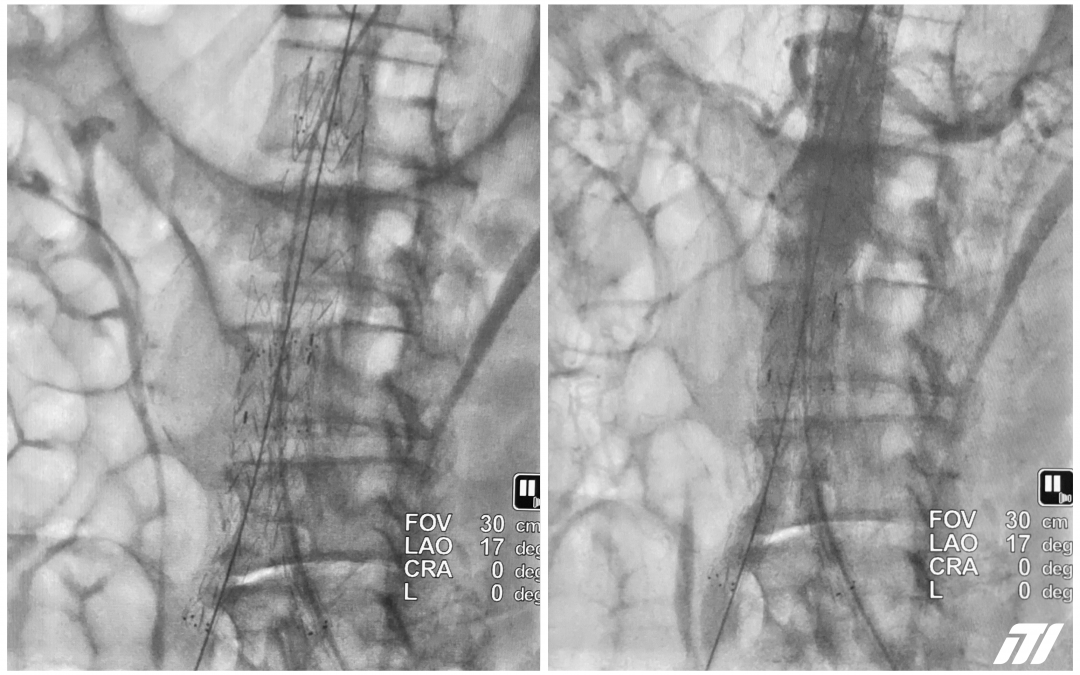 ⌀ 68mm abdominal aortic aneurysm treated with TREO stent graft