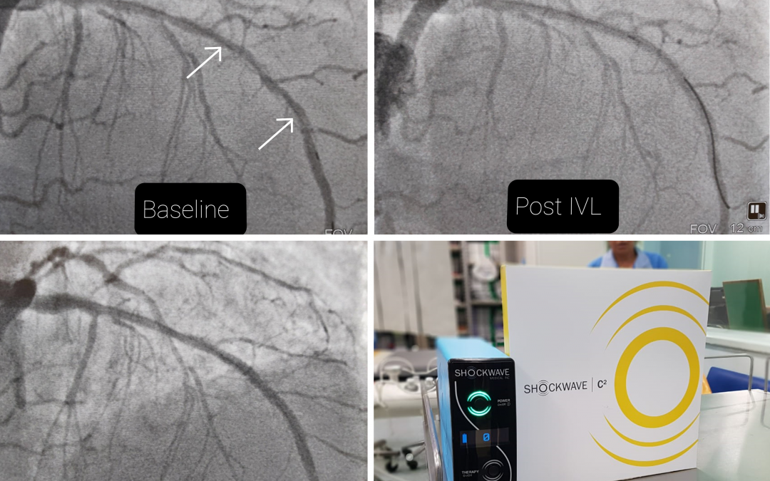 Long calcified lesion treated with Shockwave IVL
