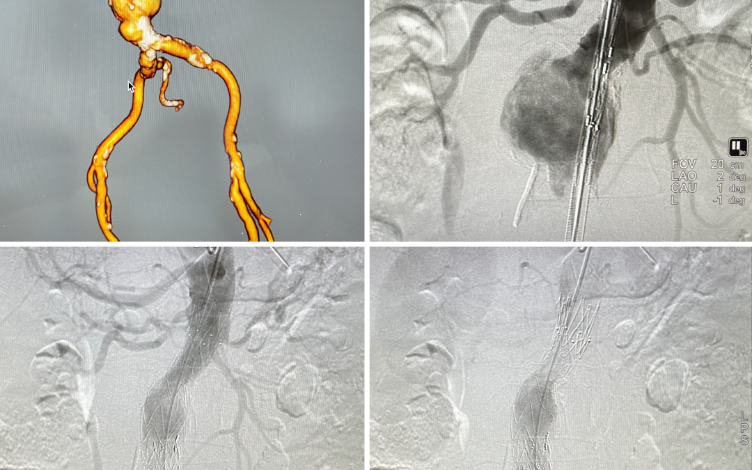 TREO abdominal stent graft for abdominal aneurysm and angulated neck