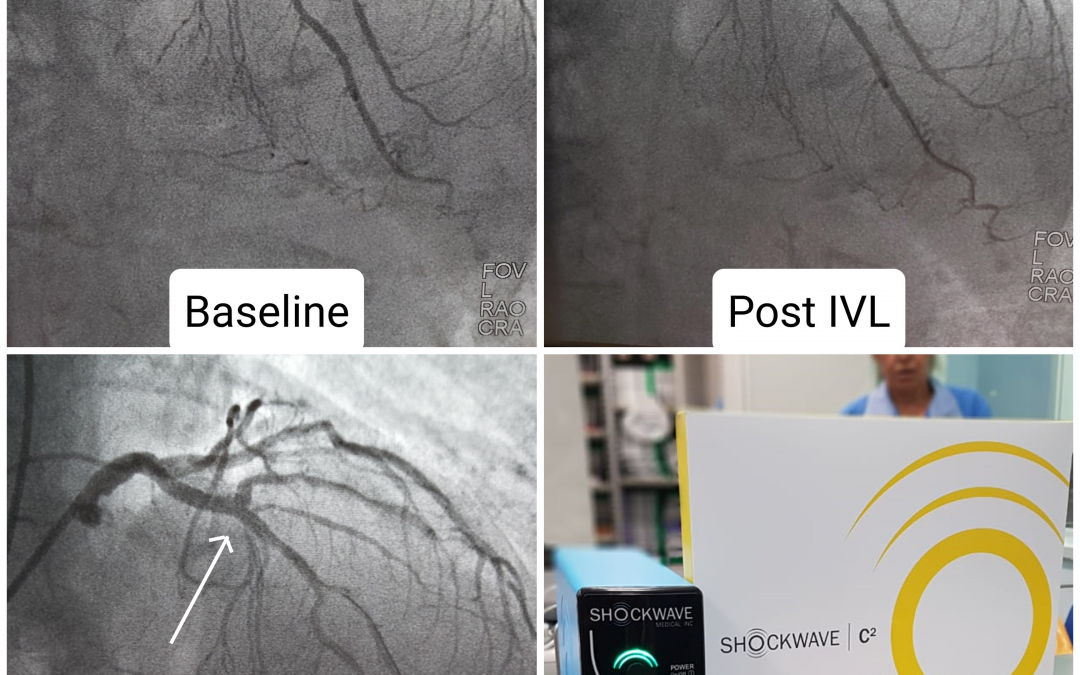 Another successful Shockwave IVL case by Dr. Ahmad Serhal